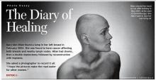 เธอผู้ต่อสู้กับมะเร็งร้าย!!!