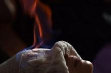 ภาพไฟบำบัดในจีน จุดไฟบนตัวคนไข้รักษาสารพัดโรค