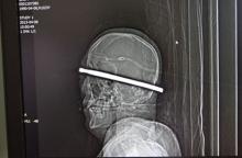 ภาพ X-Rays วัตถุประหลาดในร่างกายมนุษย์