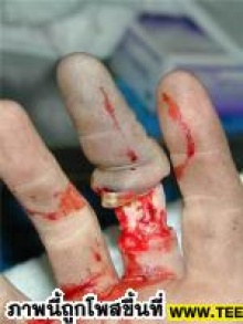 เล่นโบลิ่ง กรุณาถอดแหวน (ขอเตือน)