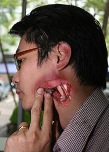 ภาพบาดแผลจากการถูกฟันด้วยศอกของชูวิทย์