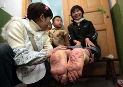 ผู้หญิงมีเท้ากลับด้าน (ประเทศจีน)